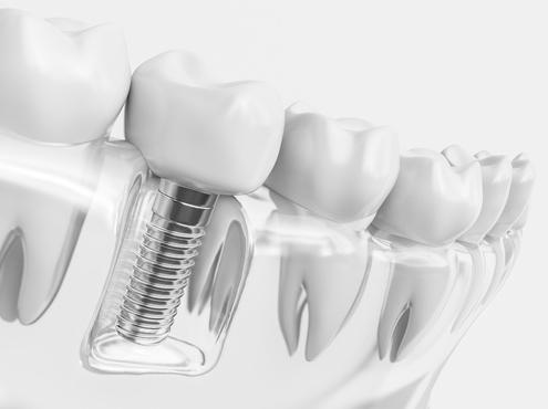Implantologie - Zahnimplantat