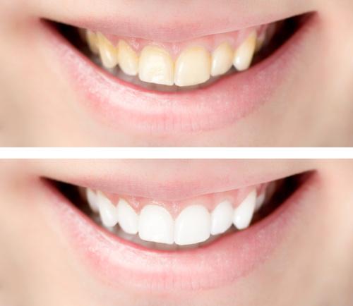 Ästhetische Zahnheilkunde | Bleeching